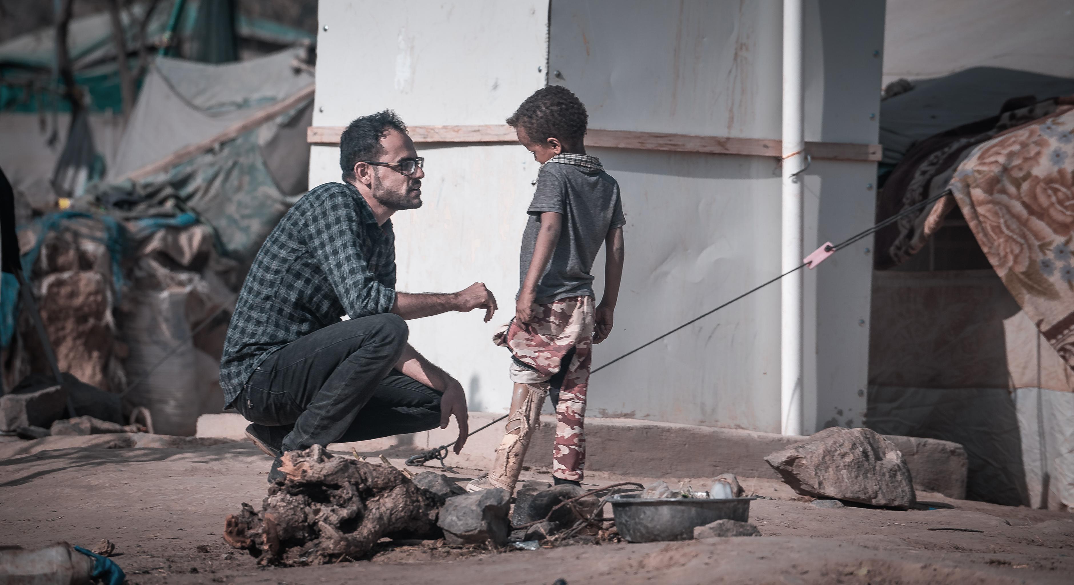 Ein Junge aus dem Jemen mit einer Beinprothese