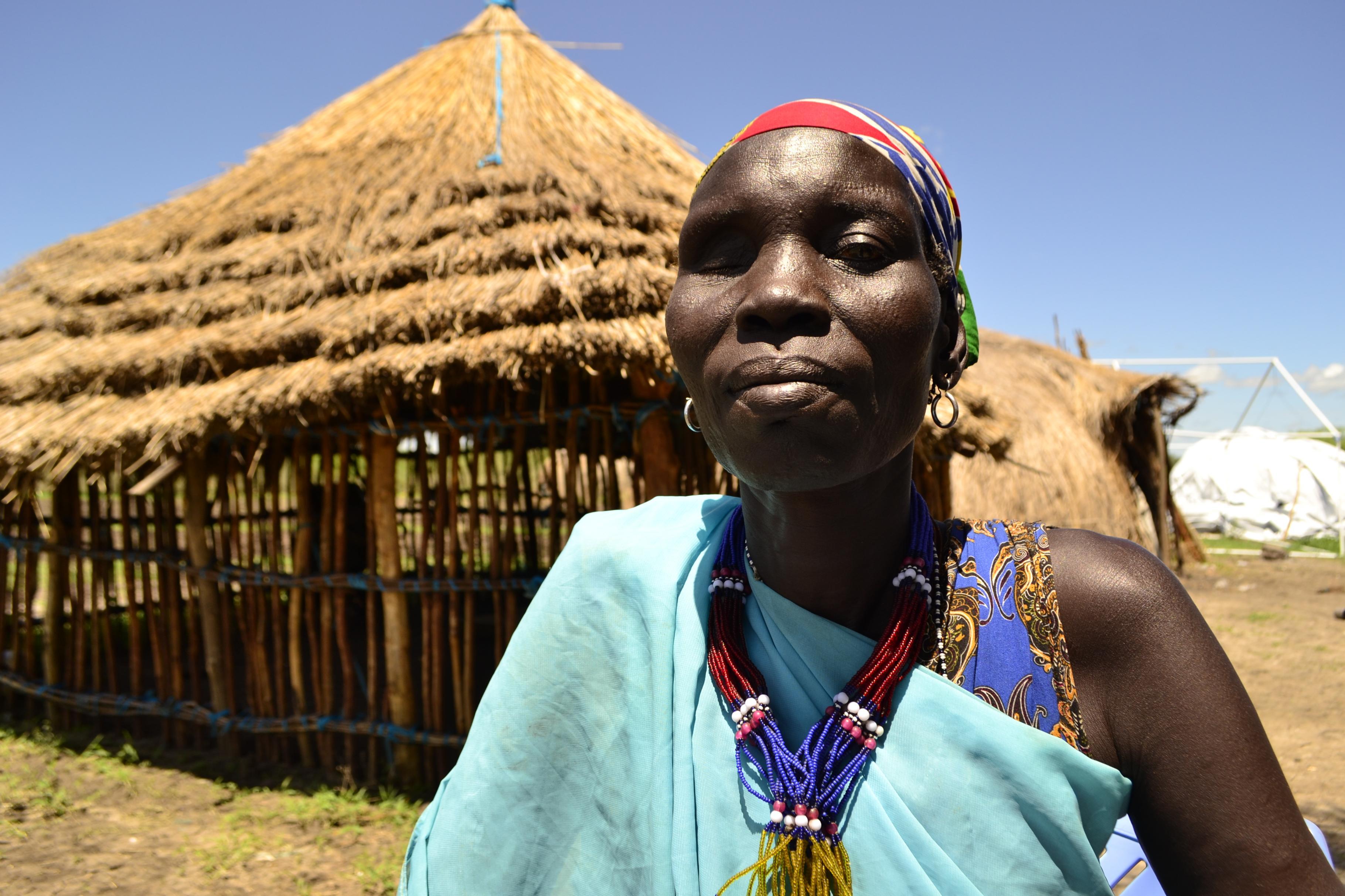 Gogol aus dem Südsudan
